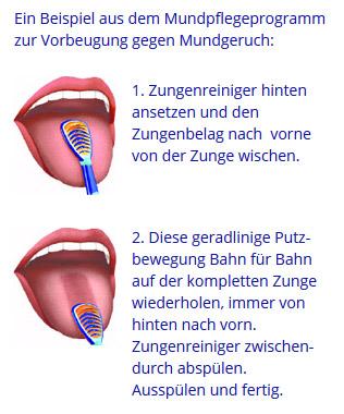 Hinten zungenbelag Belegte Zunge